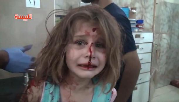 Siria, bimba colpita nel raid cerca disperatamente il padre